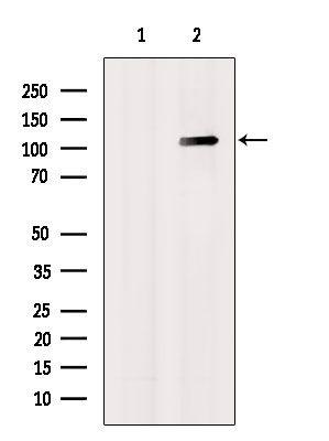 GluR1 Antibody in Western Blot (WB)