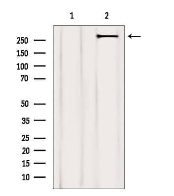 Acetyl-CoA Carboxylase Antibody in Western Blot (WB)
