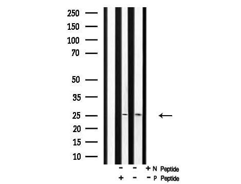 Phospho-p27 Kip1 (Thr157) Antibody in Western Blot (WB)