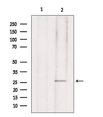Phospho-p27 Kip1 (Ser178) Antibody in Western Blot (WB)
