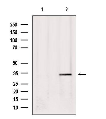 Phospho-USF1 (Thr153) Antibody in Western Blot (WB)