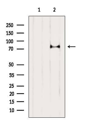 Phospho-PKC alpha (Ser657) Antibody in Western Blot (WB)