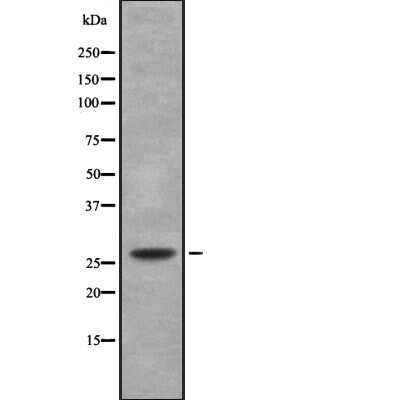 C/EBP delta/epsilon Antibody in Western Blot (WB)