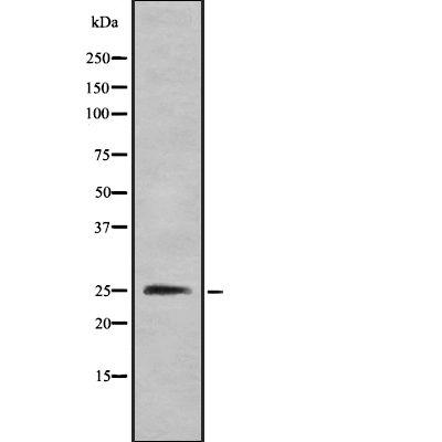 CMTM4 Antibody in Western Blot (WB)