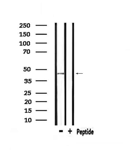 NMUR1 Antibody in Western Blot (WB)