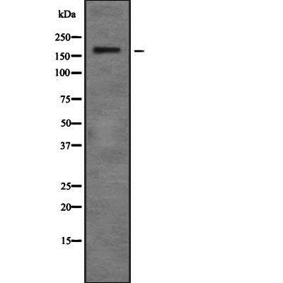 ZMYM4 Antibody in Western Blot (WB)