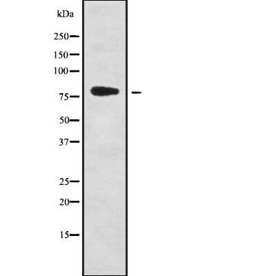 ZNF441 Antibody in Western Blot (WB)
