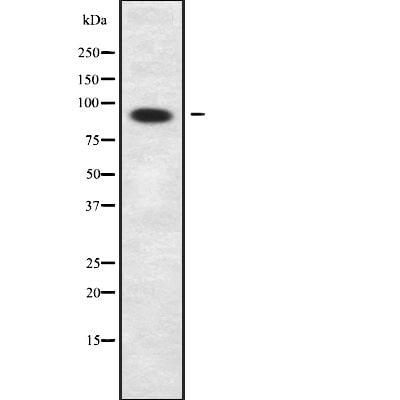 PPP1R9B Antibody in Western Blot (WB)