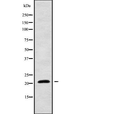 CYBA Antibody in Western Blot (WB)