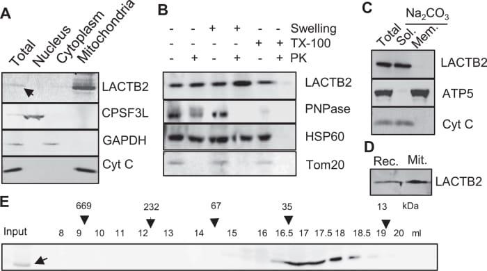 PNPase Antibody