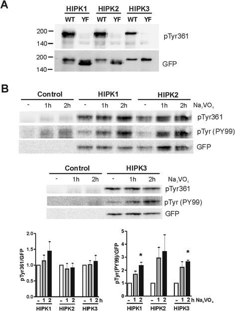 Phospho-HIPK2 (Tyr361) Antibody
