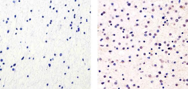 Cyclin E Antibody in Immunohistochemistry (Paraffin) (IHC (P))