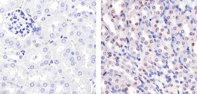 p27 Kip1 Antibody in Immunohistochemistry (Paraffin) (IHC (P))