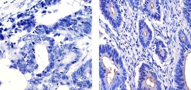 MUC1 Antibody in Immunohistochemistry (Paraffin) (IHC (P))