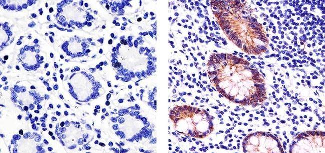 Claudin 3 Antibody in Immunohistochemistry (Paraffin) (IHC (P))