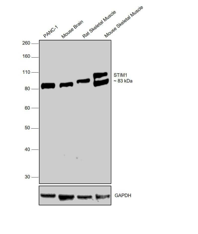 STIM1 Antibody in Western Blot (WB)