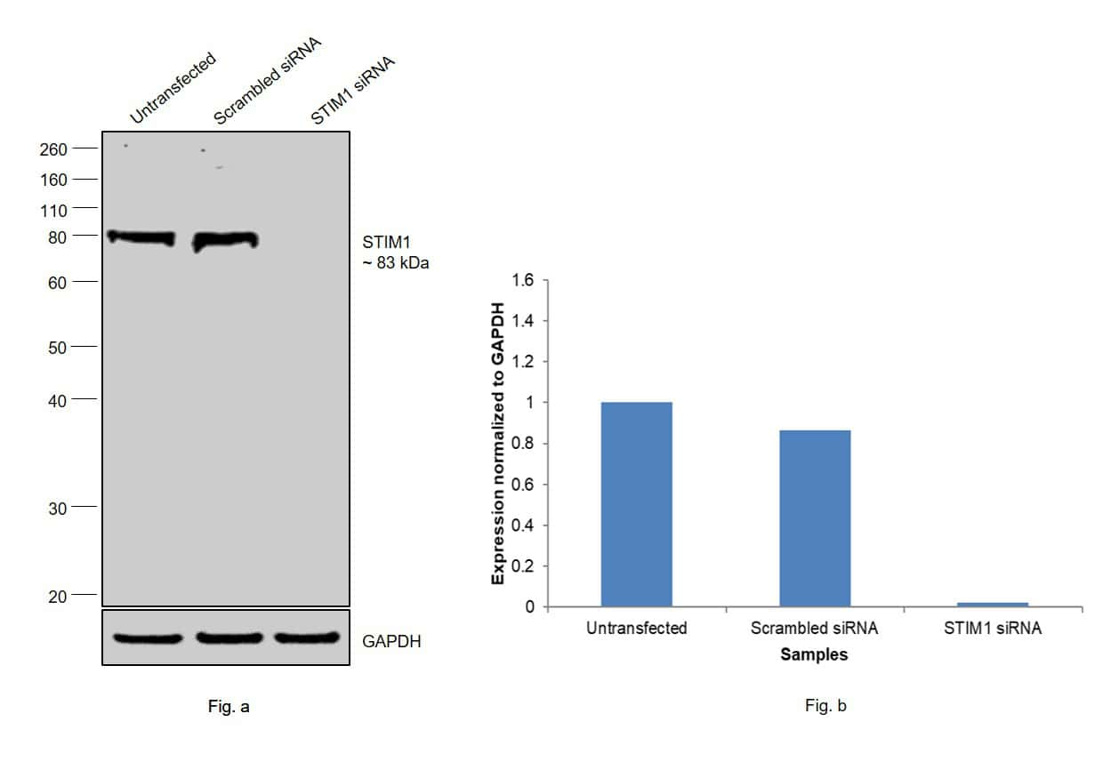 STIM1 Antibody in Knockdown