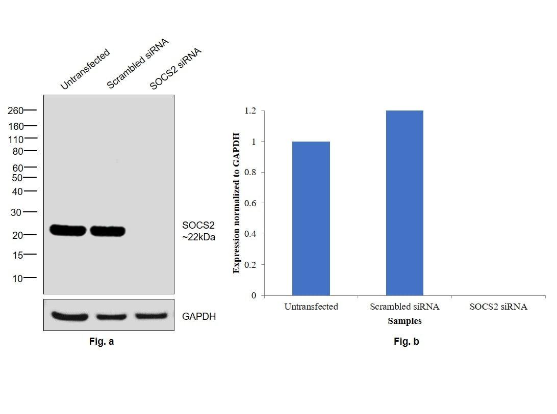 SOCS2 Antibody in Western Blot (WB)