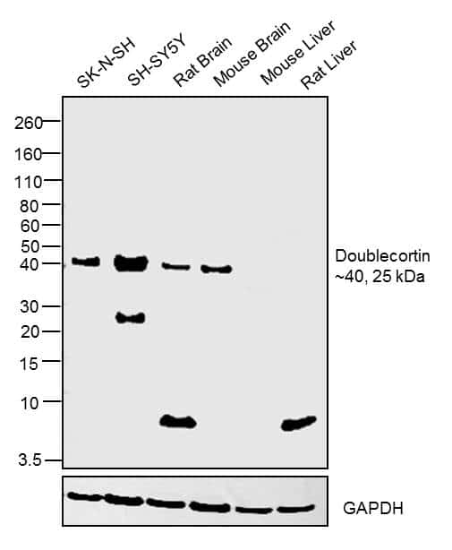 Doublecortin Antibody in Relative expression