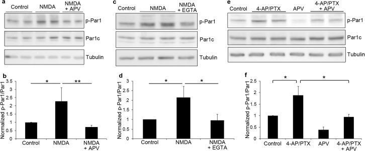Phospho-MARK1/MARK2/MARK3 (Thr215, Thr208, Thr234) Antibody