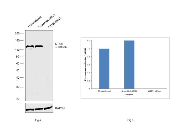GTF2I Antibody in Western Blot (WB)