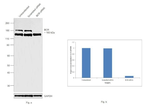 BCR Antibody in Western Blot (WB)