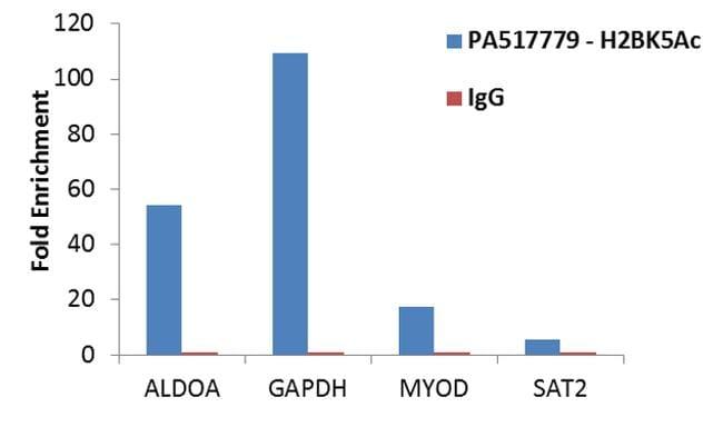 H2BK5ac Antibody in Relative expression