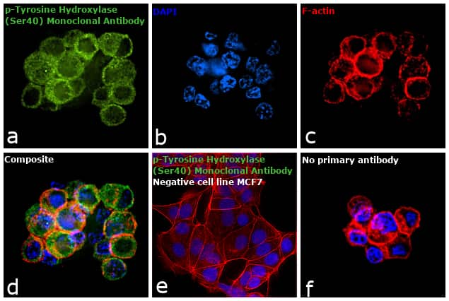 Phospho-Tyrosine Hydroxylase (Ser40) Antibody in Immunocytochemistry (ICC/IF)
