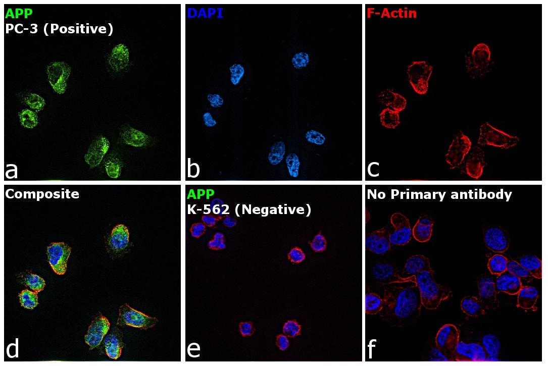 Amyloid Precursor Protein Antibody in Immunocytochemistry (ICC)