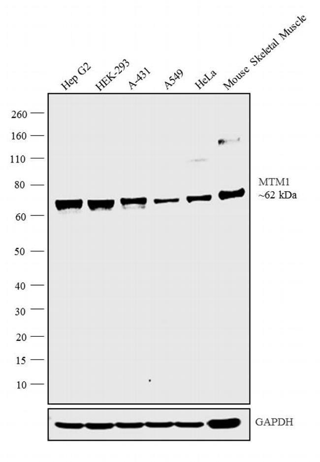 MTM1 Antibody in Western Blot (WB)