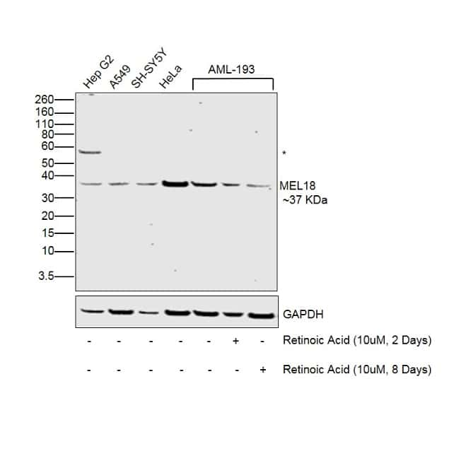 MEL18 Antibody in Cell treatment