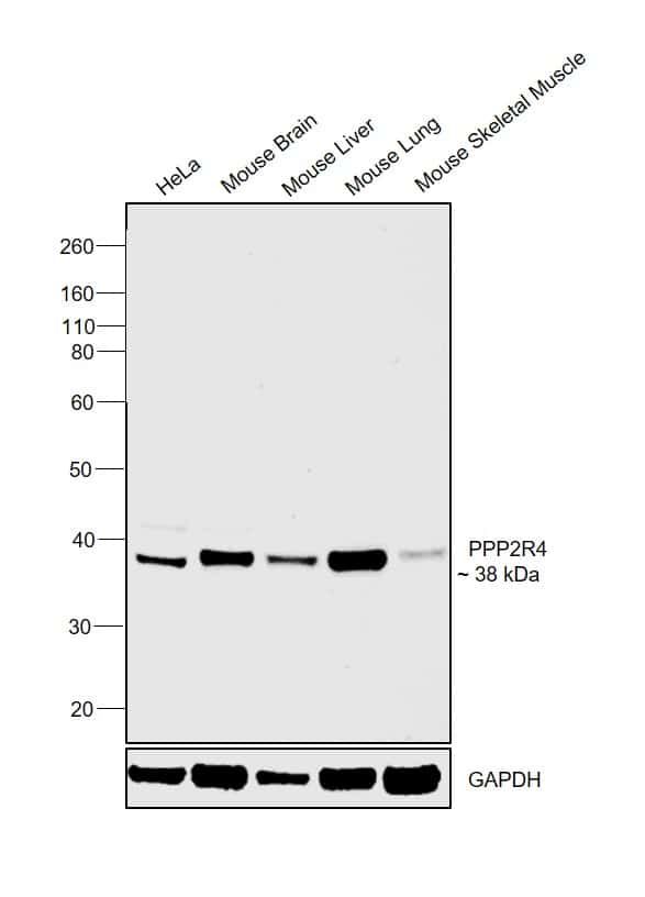 PPP2R4 Antibody in Western Blot (WB)