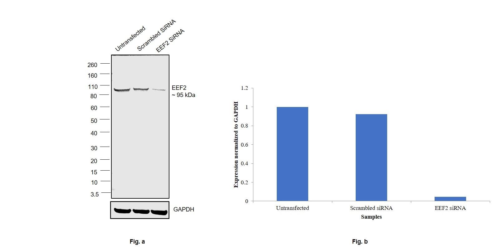 EEF2 Antibody in Knockdown
