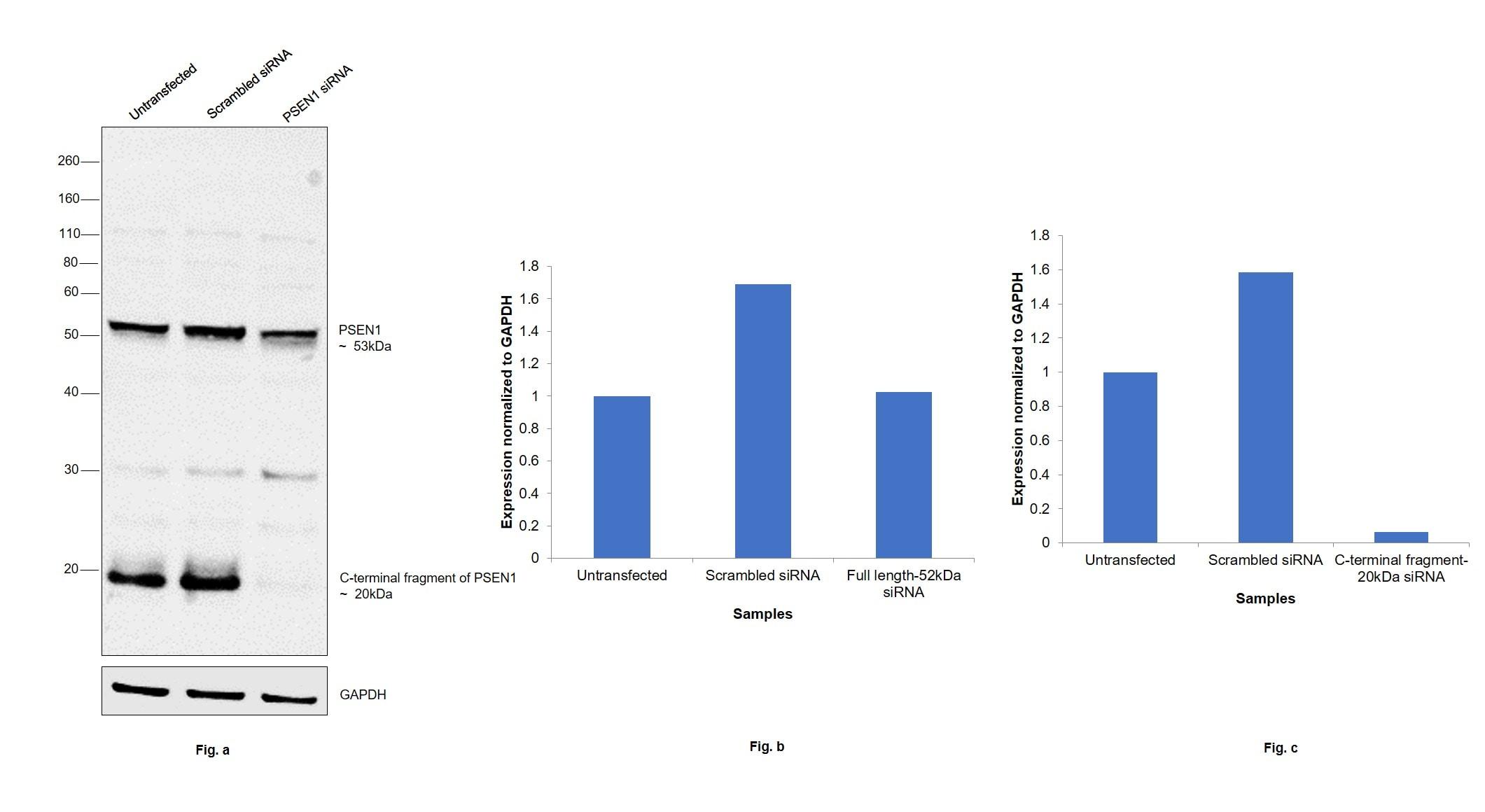 Presenilin 1 Antibody in Western Blot (WB)