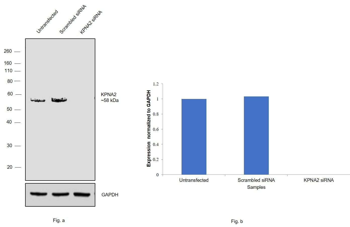 KPNA2 Antibody in Western Blot (WB)