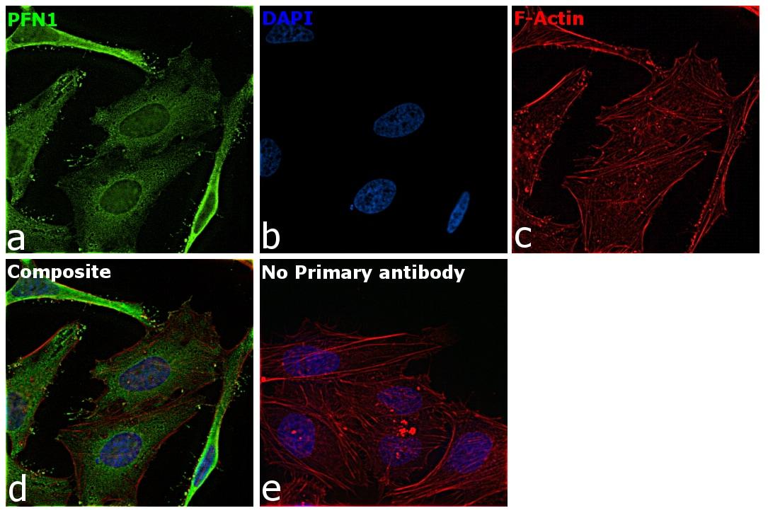 Profilin 1 Antibody in Immunocytochemistry (ICC)