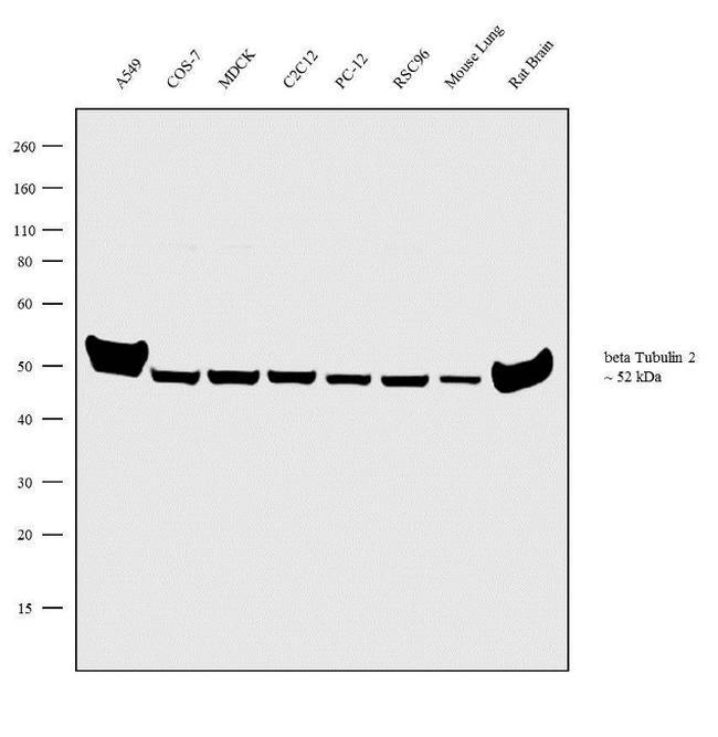 beta Tubulin 2 Antibody in Western Blot (WB)