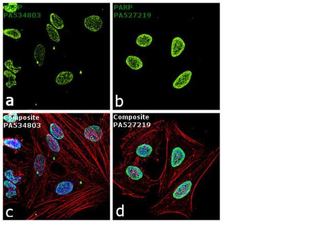 PARP Antibody in Independent antibody