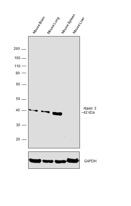 Ataxin 3 Antibody in Relative expression