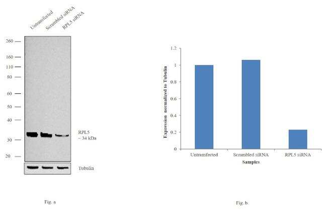 RPL5 Antibody in Western Blot (WB)