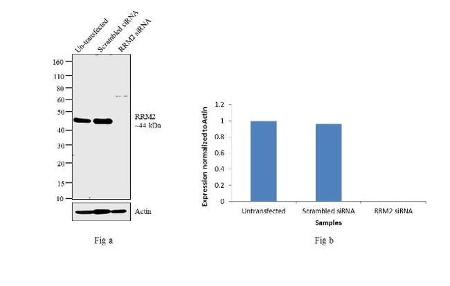 RRM2 Antibody in Western Blot (WB)