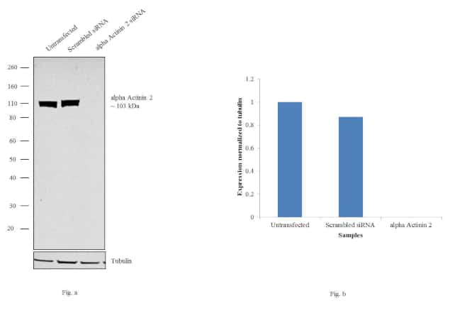 alpha Actinin 2 Antibody in Knockdown