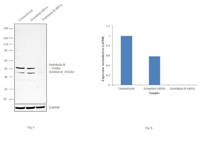 Endothelin B Receptor Antibody in KnockDown