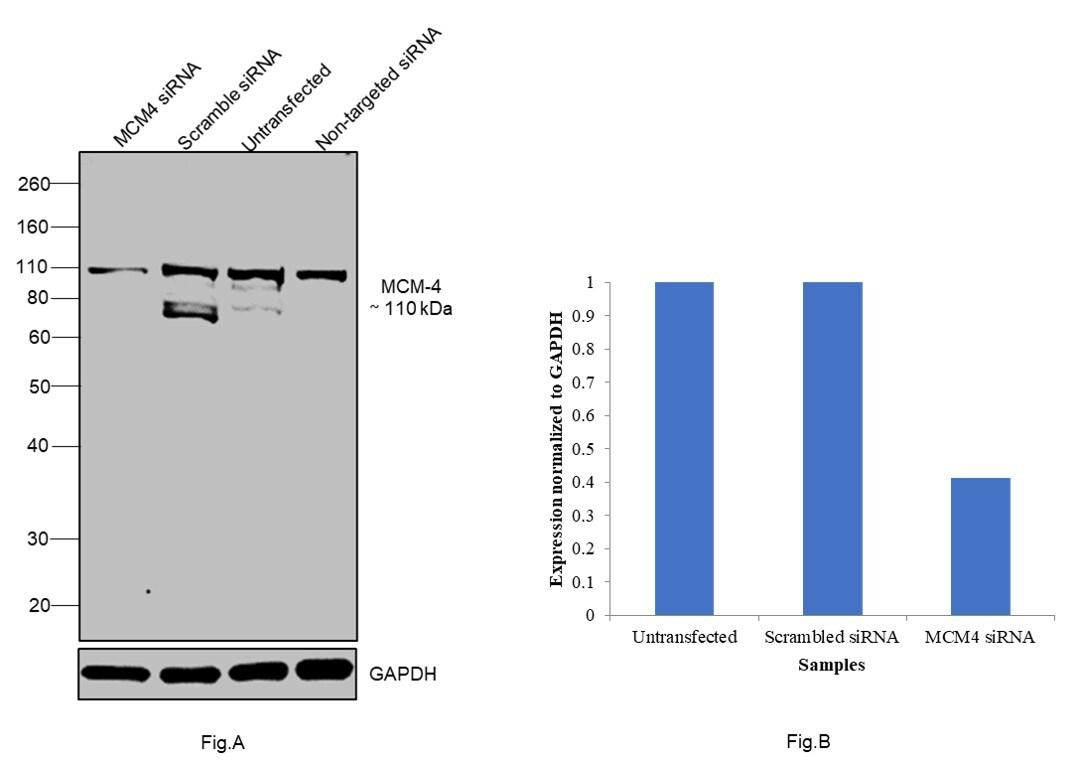 MCM4 Antibody in Western Blot (WB)