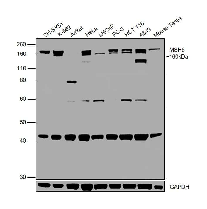 MSH6 Antibody in Western Blot (WB)