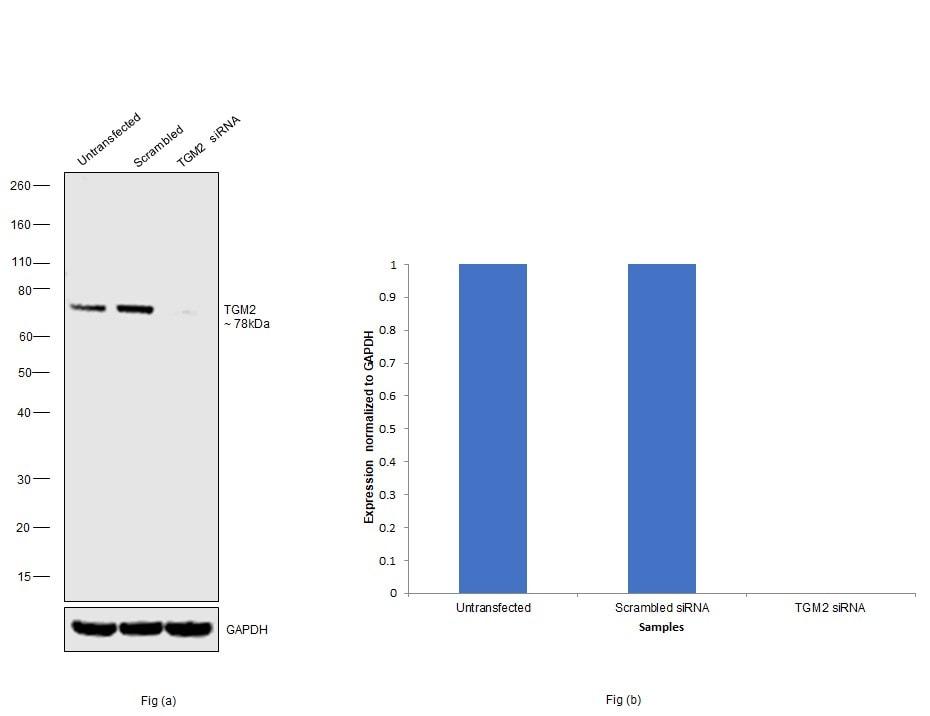 TGM2 Antibody in Knockdown