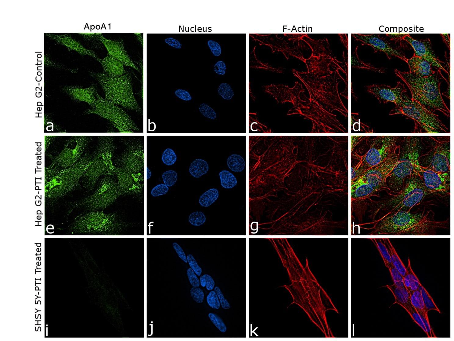 ApoA1 Antibody in Immunocytochemistry (ICC)