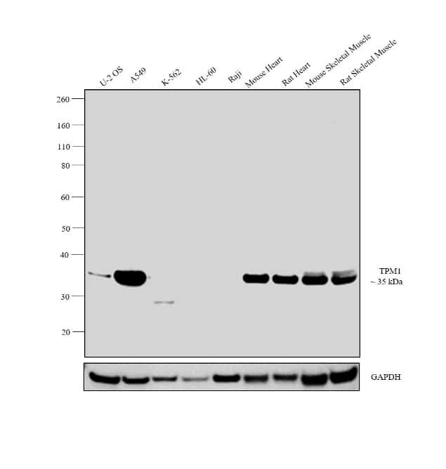 TPM1 Antibody in Relative expression