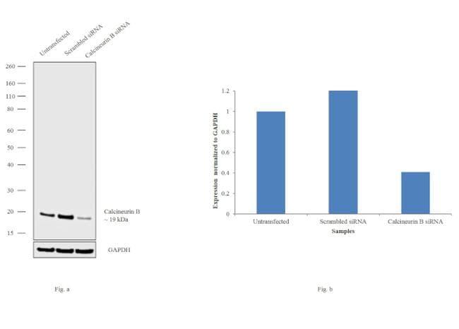 Calcineurin B Antibody in Knockdown