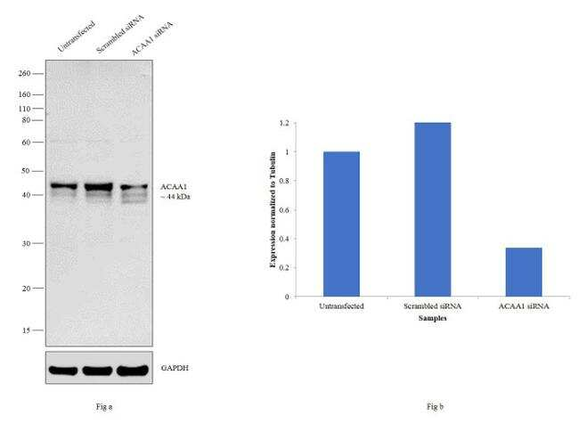 ACAA1 Antibody in Western Blot (WB)
